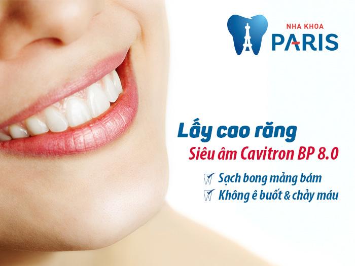 cách chữa hôi miệng paris