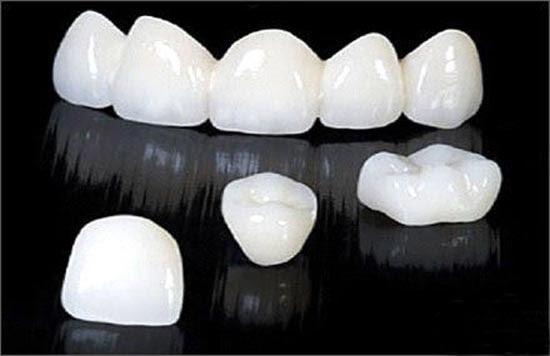 Chỉnh răng thưa với phương pháp bọc răng sứ