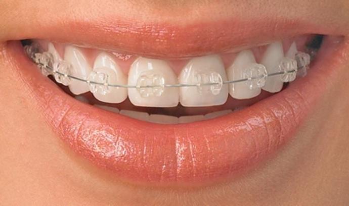 Niềng răng để chỉnh răng thưa
