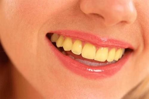 Tìm hiểu tận gốc nguyên nhân răng ố vàng