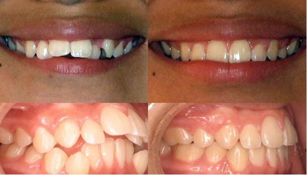 Niềng răng vẩu và 5 điều bạn cần biết 2