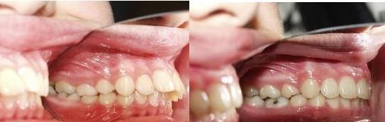 Niềng răng vẩu và 5 điều bạn cần biết 3