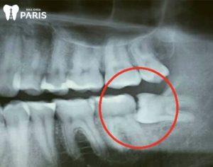 Có nên nhổ răng khôn mọc lệch 90 độ? Nên nhổ tránh biến chứng
