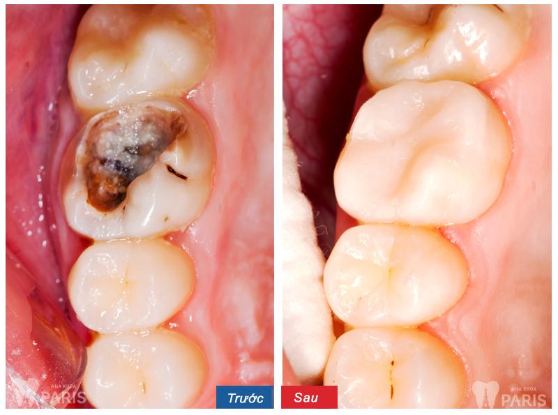 Trám răng sâu cần biết thông tin gì để hiệu quả nhất? 2