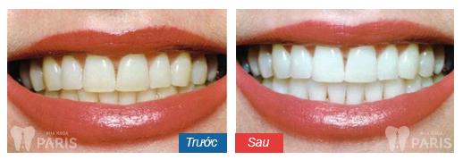 Tẩy trắng răng tại nhà bao nhiêu tiền là đảm bảo chất lượng? 2