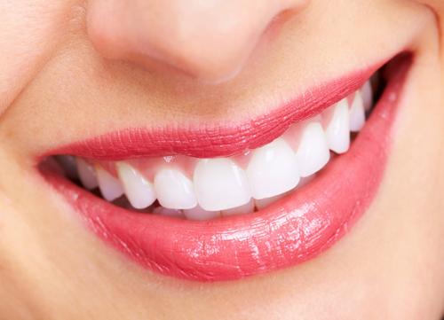 Hàn răng mẻ hết bao nhiêu tiền là rẻ nhất? 2