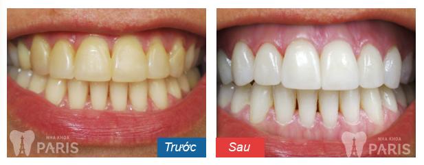 4 thắc mắc khi tẩy trắng răng bằng laser nên biết 2