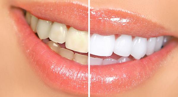 Làm mặt răng sứ Veneer giá bao nhiêu là rẻ nhất?【Bảng giá CHUẨN】-1