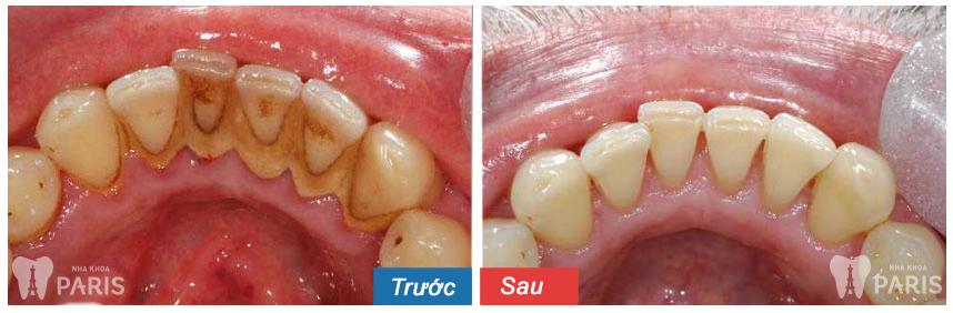 Chải răng bằng than củi giúp làm trắng răng hiệu quả