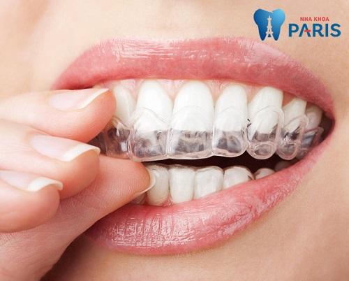 Thuốc tẩy trắng răng tại nhà NiteWhite có thực sự hiệu quả ? 4
