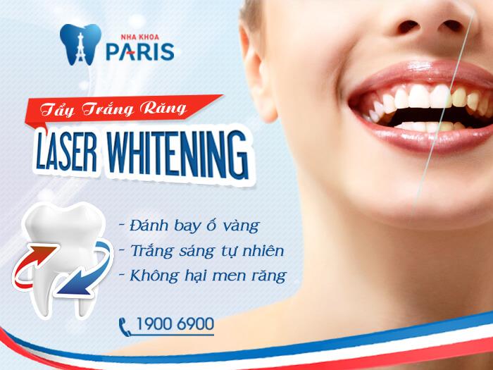 Bác sĩ tư vấn: Nên tẩy trắng răng bằng phương pháp nào? 4
