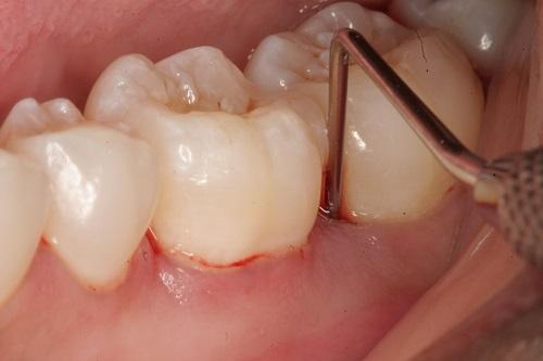 Nguyên nhân và cách chữa răng lung lay Vĩnh Viễn tại nhà hiệu quả 1