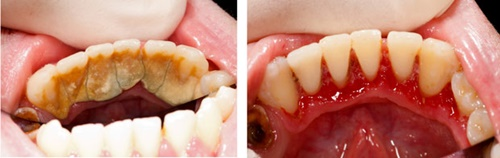 Lấy cao răng mất bao lâu? Quy trình như thế nào? 6