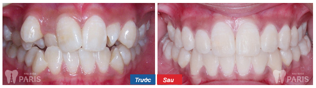 Niềng răng 1 hàm có được không thưa bác sỹ?