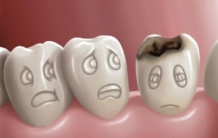 Bị sâu răng phải làm sao? Có nên nhổ răng sâu không? 1
