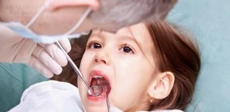 Răng sữa lung lay có cần thiết phải nhổ bỏ không?