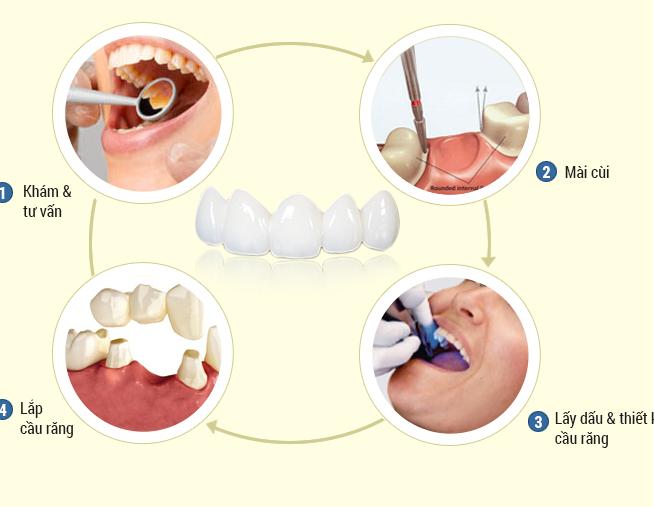 Từ A-Z quy trình làm cầu răng diễn ra như thế nào? 7