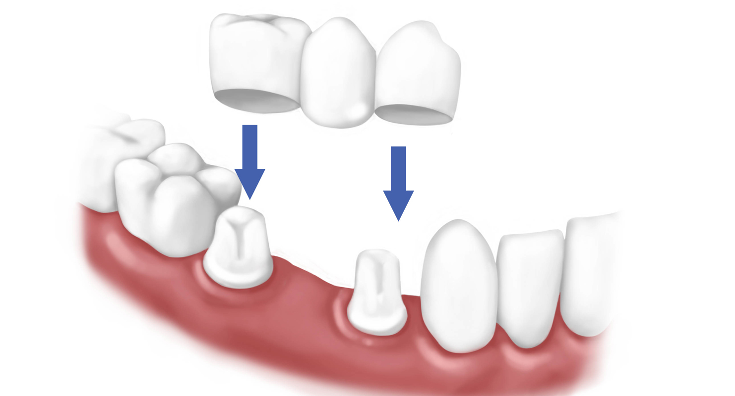 Từ A-Z quy trình làm cầu răng diễn ra như thế nào? 1