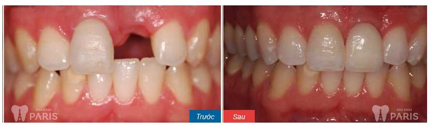 Từ A-Z quy trình làm cầu răng diễn ra như thế nào? 5