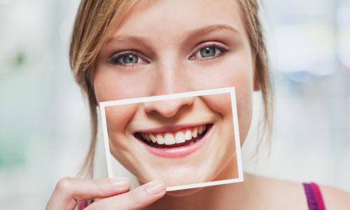 3 cách chữa răng vẩu HIỆU QUẢ hàng đầu hiện nay 2
