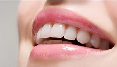 Niềng răng thưa mất bao lâu là hoàn thành?