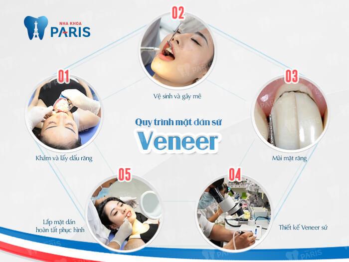 Giải đáp thắc mắc: Làm răng sứ veneer có tốt không? 2
