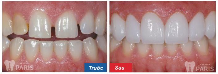 Kết quả niềng răng thưa tại nha khoa Paris