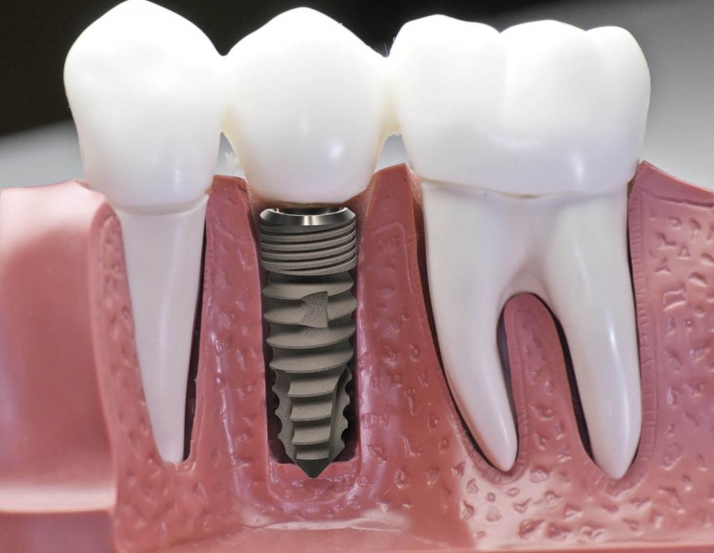 Trồng răng implant mất bao lâu? – Chuyên gia nha khoa tư vấn 2