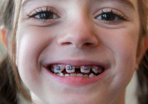 Image result for Niềng răng ở người lớn và trẻ em có tốt không ?
