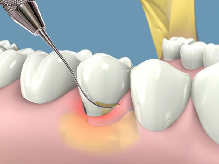 Răng hàm bị lung lay, phải khắc phục bằng cách nào?