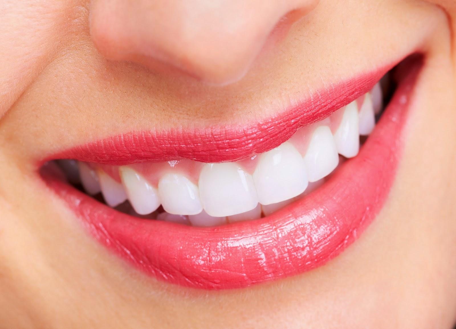 Tẩy trắng răng tại nhà bao nhiêu tiền là đảm bảo chất lượng? 1