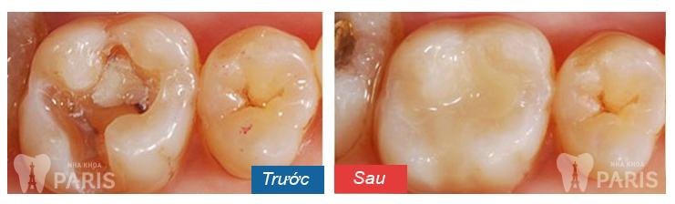 Trám răng sâu giá bao nhiêu? Bảng giá MỚI NHẤT 2018 2