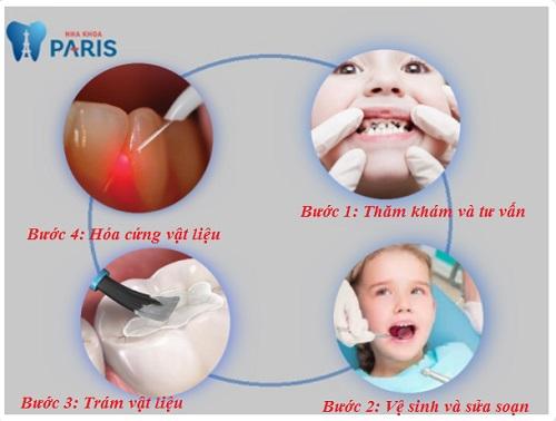 Răng sữa bị sâu có nên hàn lại không? Những lưu ý khi hàn răng sữa 3