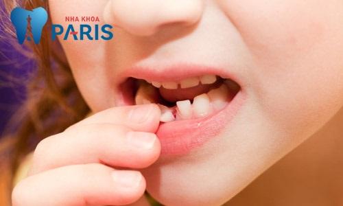 Răng sữa bị sâu có nên hàn lại không? Những lưu ý khi hàn răng sữa 2