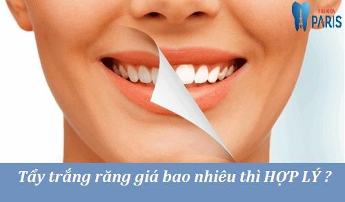 Tẩy trắng răng giá bao nhiêu tiền ? - Mức giá từng phương pháp