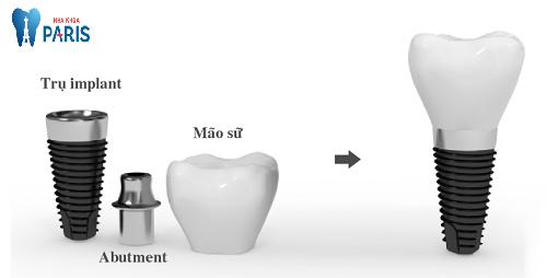 Trồng răng implant giá bao nhiêu tiền ? - Bảng giá implant T3/2018
