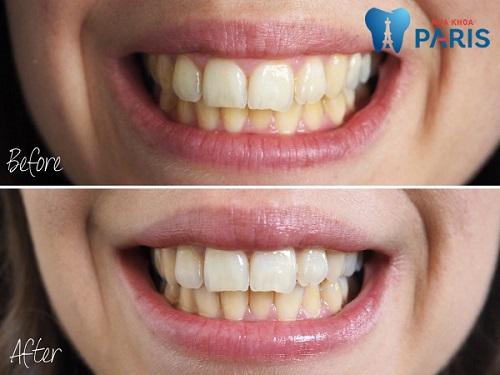 Đánh giá miếng dán trắng răng về hiệu quả và mức độ an toàn 2