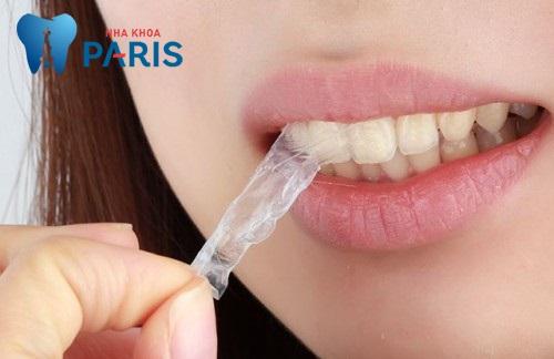 Đánh giá miếng dán trắng răng về hiệu quả và mức độ an toàn 3
