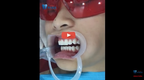 Đánh giá miếng dán trắng răng về hiệu quả và mức độ an toàn 5