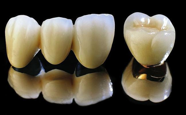 Bọc mão răng sứ giá bao nhiêu? CHẤT LƯỢNG có tương xứng?