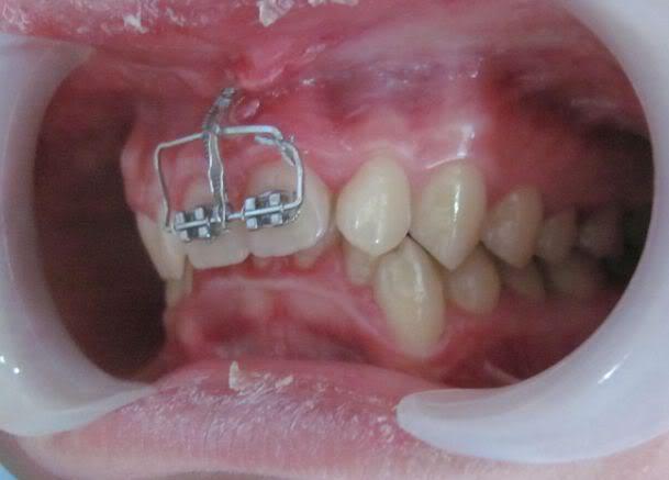 Đánh lún răng là gì? Khi nào thì áp dụng được? 1