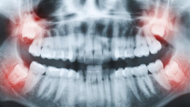 Trám răng có đau không? Nguyên nhân hàn răng bị đau? 2
