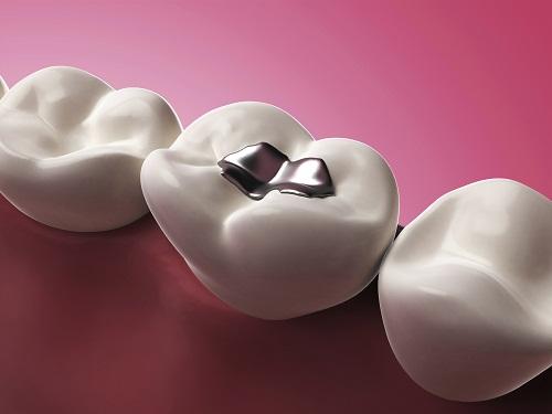 Hàn răng có đăt không