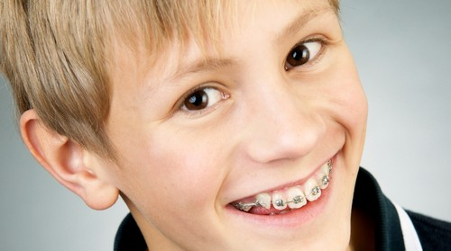 Niềng răng có phải nhổ răng không