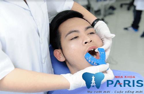 Làm máng tẩy trắng răng tại nhà có tốt không? NK Paris 3