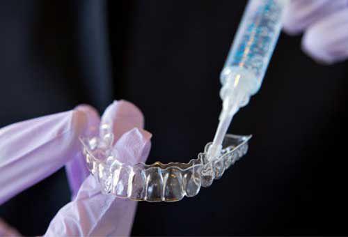 Làm máng tẩy trắng răng tại nhà có tốt không? NK Paris 5