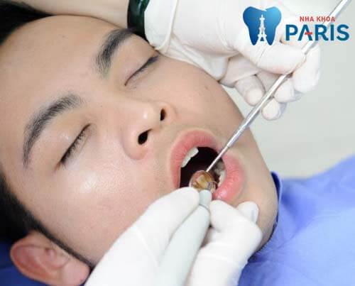 Cách chữa bệnh viêm nướu răng hiệu quả từ Dân gian tới >> Hiện đại 5