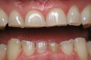 Cách chữa bệnh nghiến răng ban đêm nào hiệu quả nhất? 4