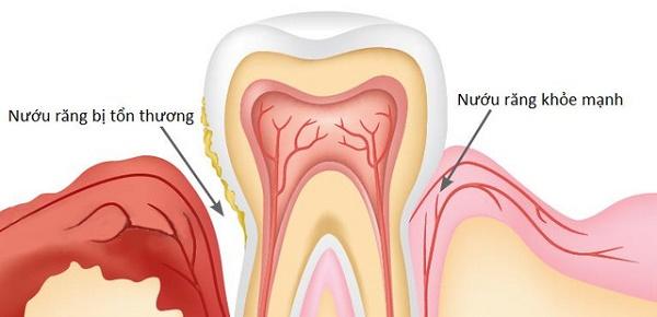 Răng lung lay phải làm sao
