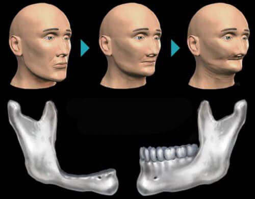 Tiêu xương răng chữa ở đâu TỐT, được nhiều người tin tưởng? 1